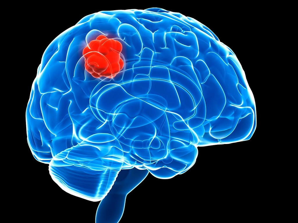 Diagnosis and Different Types of Brain Tumor Surgery That You Should Know 1