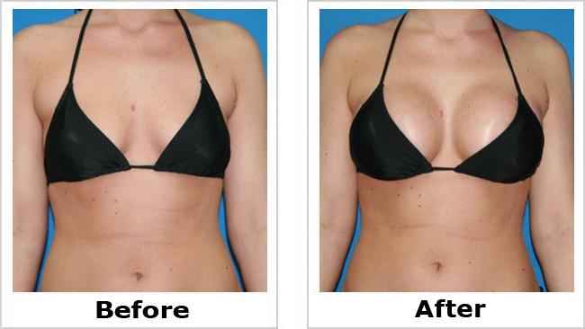 Best Breast Implantation