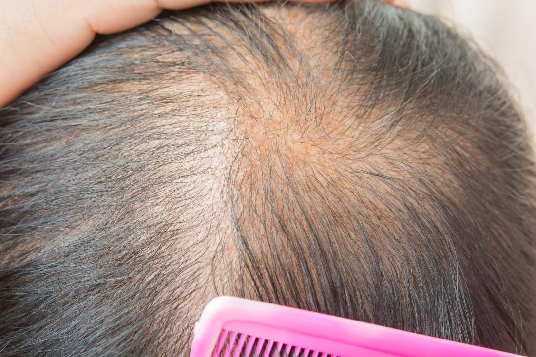 What is the best Solution for recovering Alopecia?