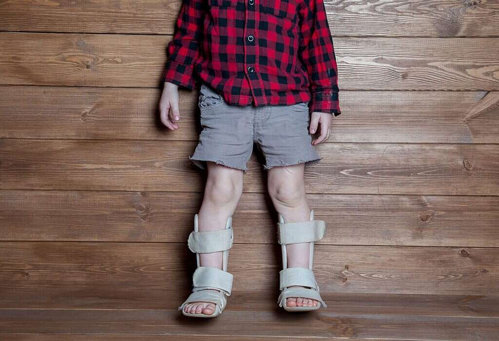 How to deal with rickets in children? 2