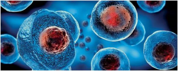 A Safe Treatment for Rheumatoid Arthritis: Stem Cells